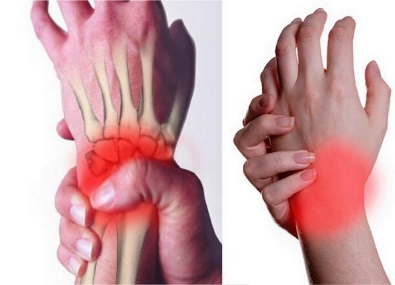 Болит Сустав Левой Руки Как Наложить Фольгу