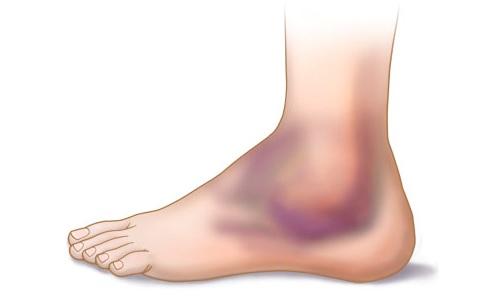 Сильный ушиб ноги: что делать и как лечить в домашних условиях