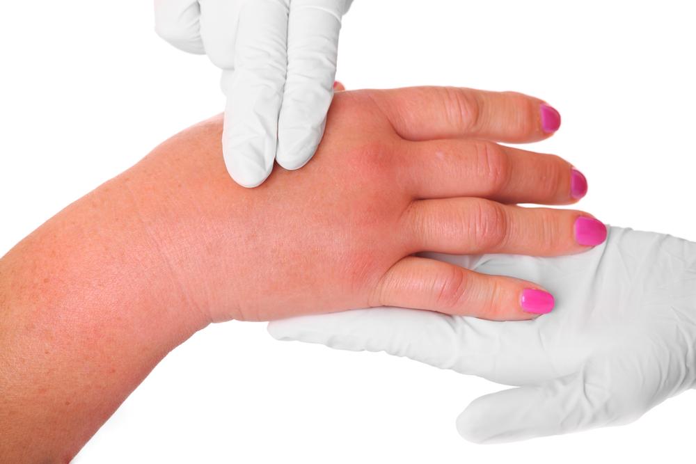 Как снять отек при переломе руки. После снятия гипса рука отекает и сильно болит — что делать