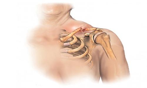 После перелома ключицы рука не поднимается в плечевом суставе