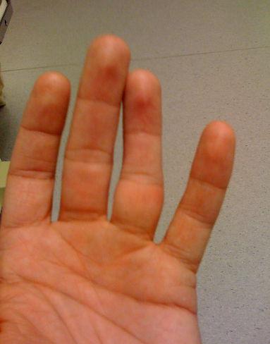 Как определить перелом мизинца на руке и чем его лечить?