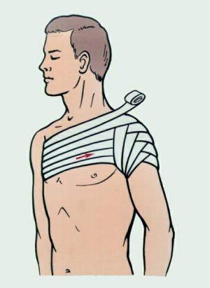 Изображение - Повязка на плечевой сустав техника kolosovidnaya-povyazka1-300x411