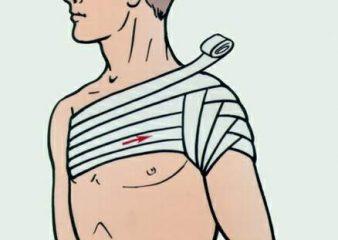 Симптомы и лечение при переломе руки со смещением