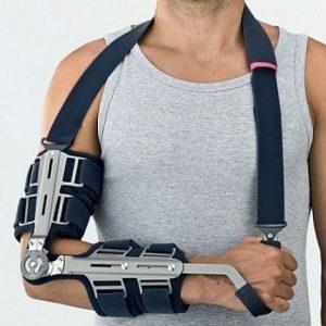 Перелом локтевой кости: лечение и реабилитация после травмы ...