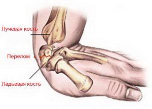 перелом лучезапястного сустава