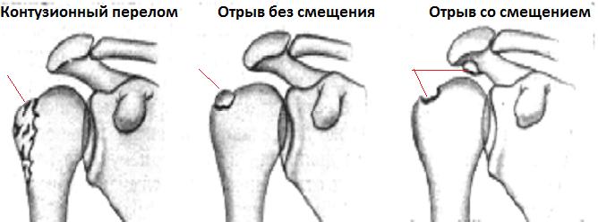 perelom-bugorka1-jpg