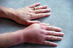 перелом кисти рук