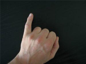 Симптомы и лечение перелома мизинца на руке