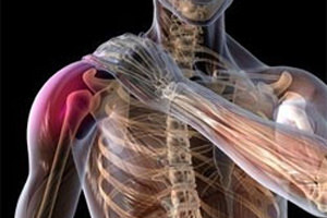 Изображение - Перелом головки локтевого сустава perelom-plecha