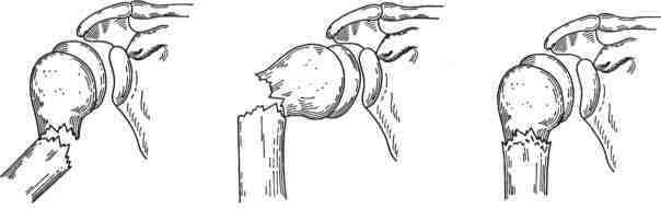 Перелом хирургической шейки плечевой кости со смещение и без ...
