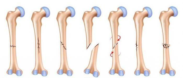 Лечение перелома плеча и восстановление после травмы