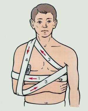 Изображение - Восходящая колосовидная повязка на плечевой сустав dezo-300x377