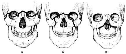 классификация-лефора1