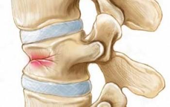 Что такое компрессионный перелом и что он означает?