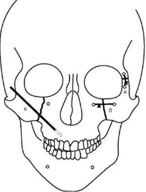остеосинтез-верхней-челюсти
