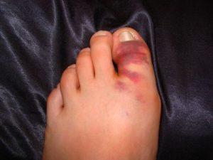 перелом-пальца-на-ноге1