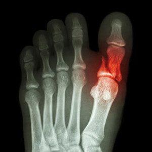 перелом-пальца-на-ноге2