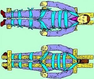 перелом-позвоночника-ервая-помощь