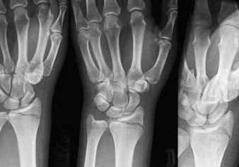 Перелом большого пальца