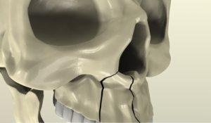 перелом-верхней-челюсти1
