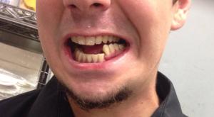 переломы-нижней-челюсти3