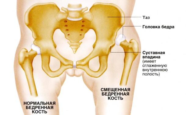Изображение - Двухсторонний вывих тазобедренного сустава displaziya-tazobedrennogo-sustava1