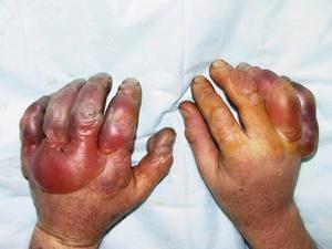 Признаки обморожения ног и первая помощь пострадавшему