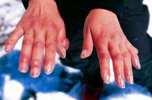 Дореактивный период отморожения: симптомы и помощь пострадавшему