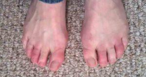 Боль пальцев ног при обморожении