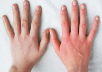 После обморожения болят суставы thumbnail