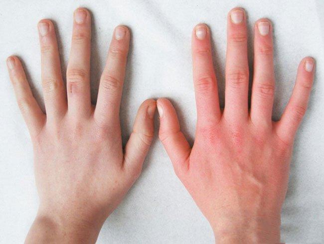 Обморожение рук: первая помощь и лечение, что делать при ...