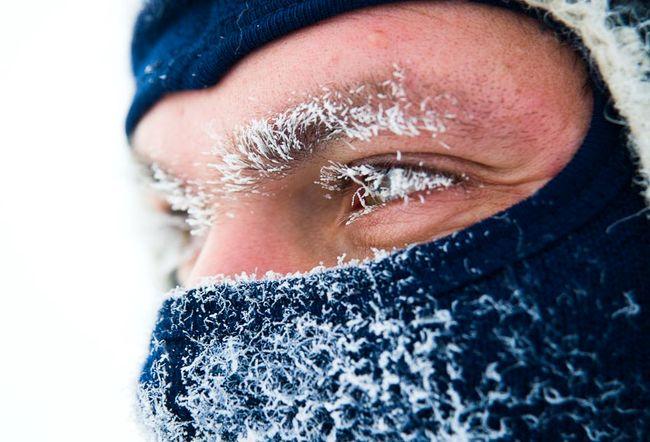 Осложнения после обморожения