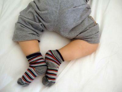 Подвывих тазобедренного сустава у детей и его лечение у новорожденных