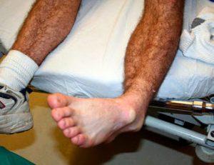 Вывих лодыжки лечение в домашних условиях