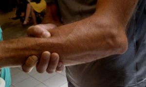 Вывих локтевого сустава лечение последствия и первая помощь