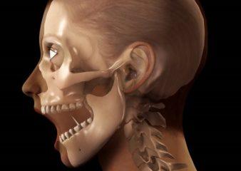 Изображение - Подвывих челюстного сустава vyvih-nizhnej-chelyusti-338x240