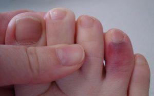 У меня вывих на ноге возле пальцев