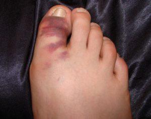 Сколько заживает вывих пальца ноги