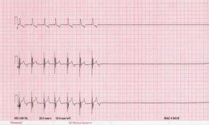 Как накладывать жгуты при сердечной недостаточности