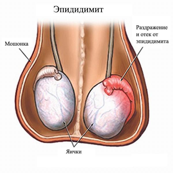 Хронический простатит и воспаление яичек