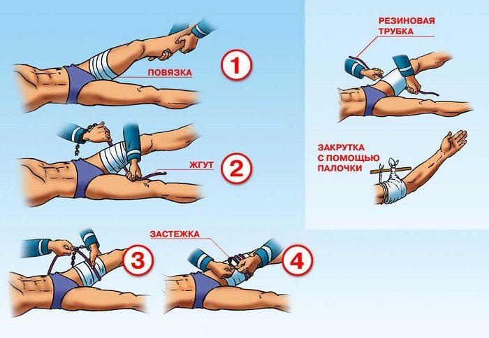 Инструкции по наложению жгута при артериальном кровотечении