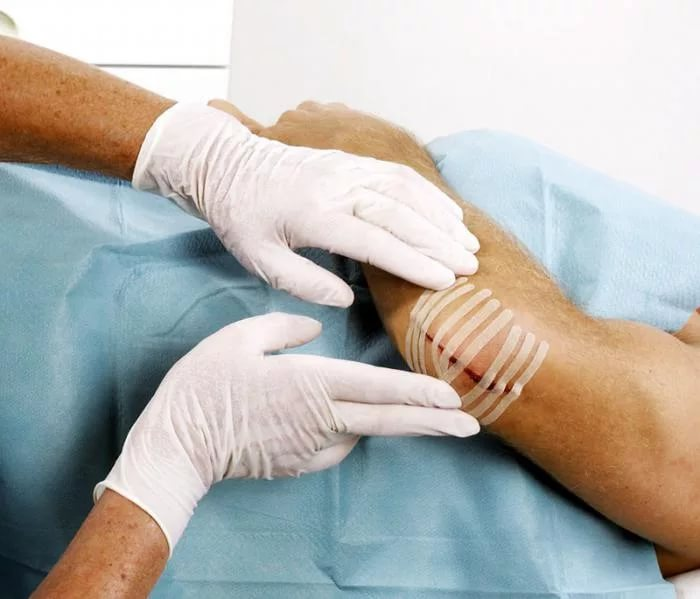Первая помощь рваной ране лечевого сустава с кровотечением профилактика коксартроза тазобедренного сустава