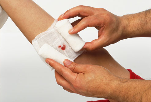 Обработка гнойных ран после операции
