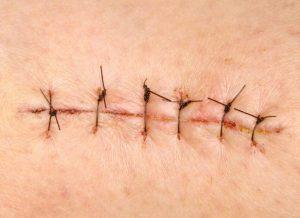 Восстановление после операции перелом шейки бедра