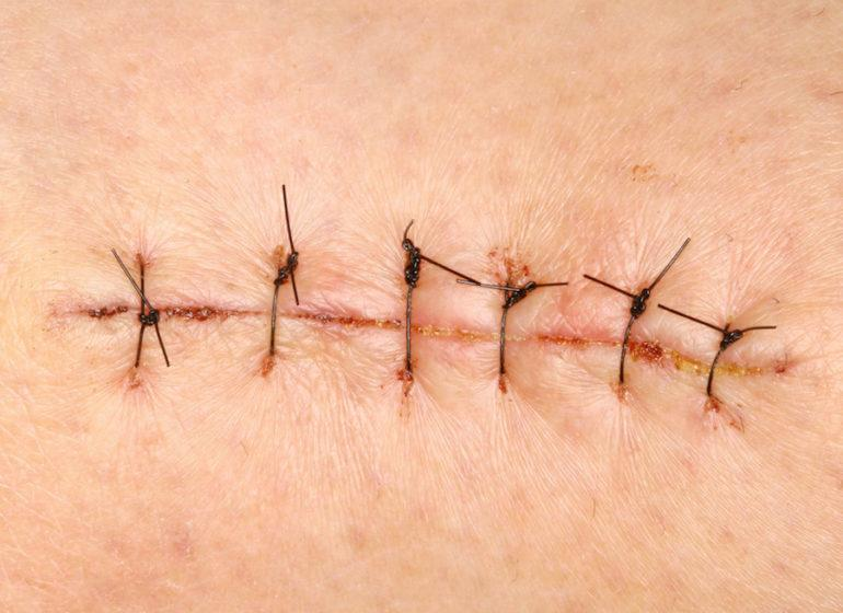 Сколько заживает шов после операции на ноге. Почему могут болеть швы после операции и как избавиться от боли