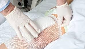 Как наносить стрептоцид на рану