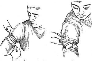 Правильный способ остановки капиллярного кровотечения ответ