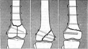 Перелом большеберцовой кости. Осложнения перелома. Диагностика и лечение переломов большеберцовой кости