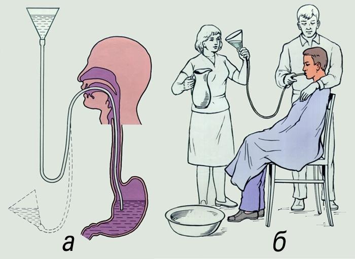 Как в домашних условиях промыть желудок