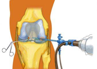 Сколько по времени заживает разрыв связок коленного сустава